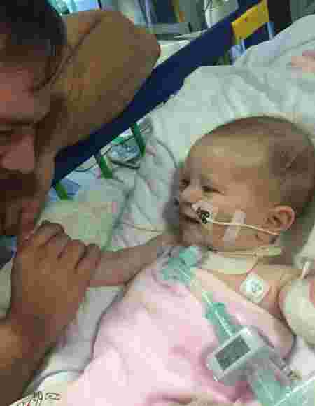 Born Without Lung, Toddler's Heart Stapled To Her Ribcage To Stop It From Moving