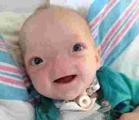 baby born without a nose