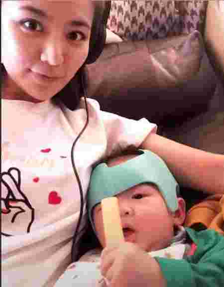 helmet therapy for babies