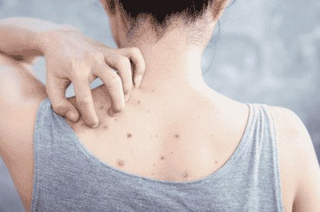 What To Do When You Have An Allergic Reaction