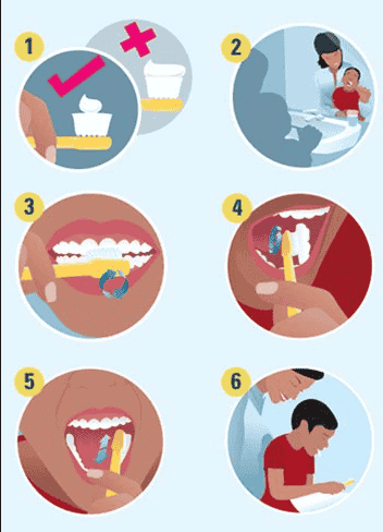 Everything You Should Know About Tooth Decay In Children