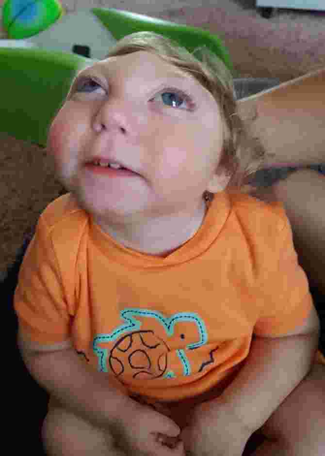 Miracle Baby Born With Most Of Skull Missing Celebrates Second Birthday