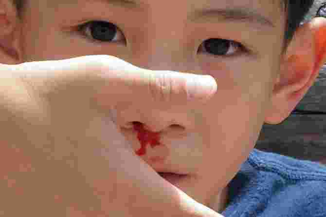 Emergency first aid for common household injuries: Important info for parents