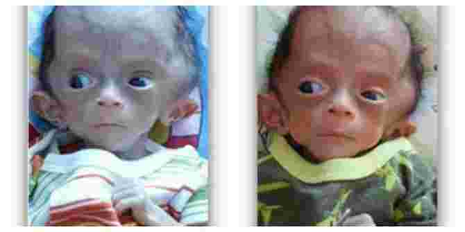 Singapore baby with hydrocephalus needs your HELP!