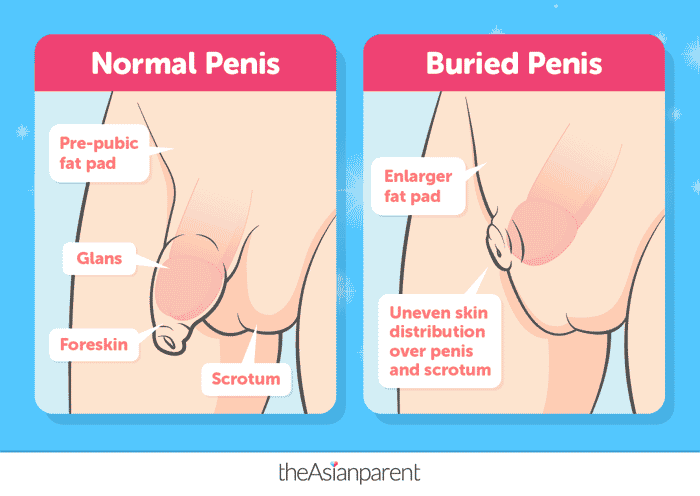 buried penis syndrome
