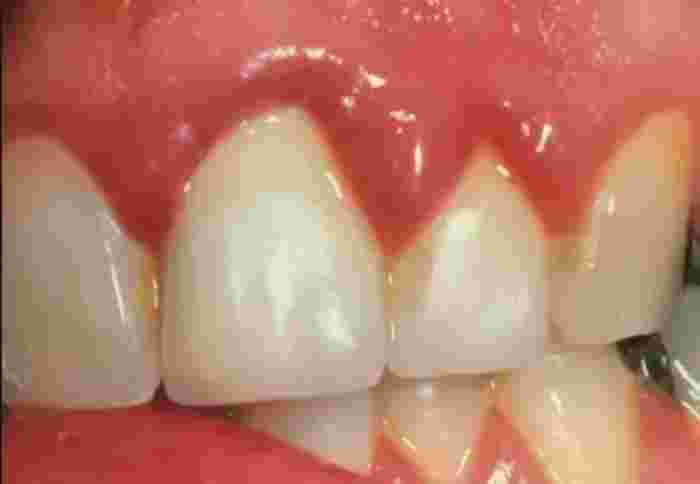 sore gums in early pregnancy
