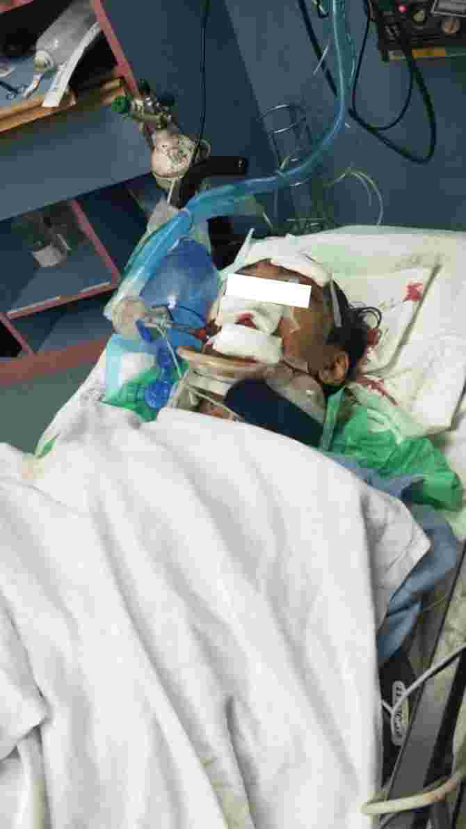 Woman Appeals for Witness To ECP Motorcycle Accident That Left Husband With Cracked Skull