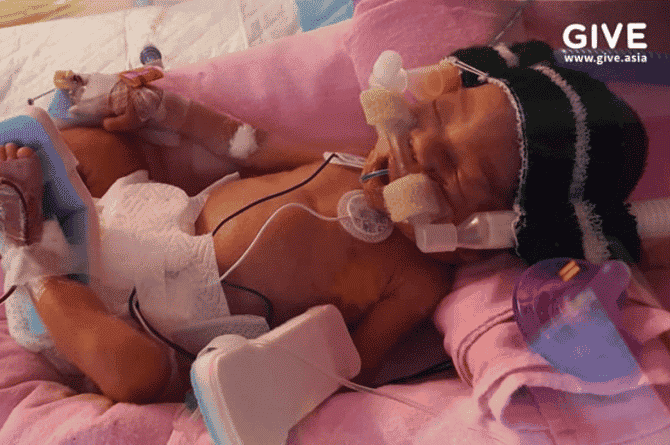 Singapore Couple Become Parents To Premature Baby, But Need $280K For Medical Fees