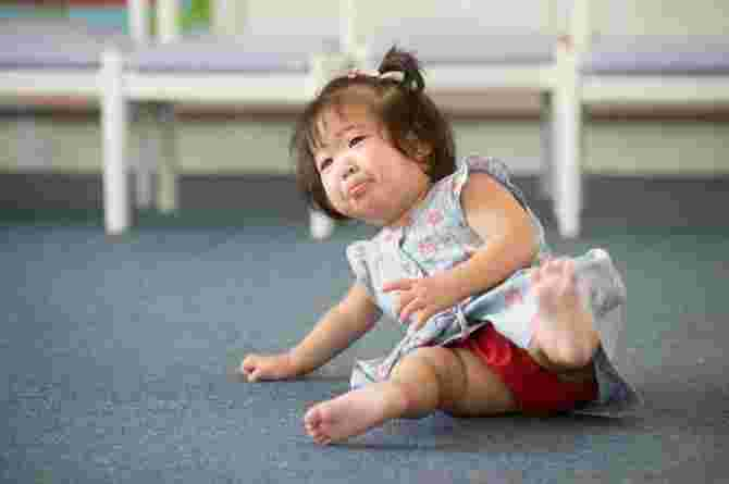 infant head injury guidelines
