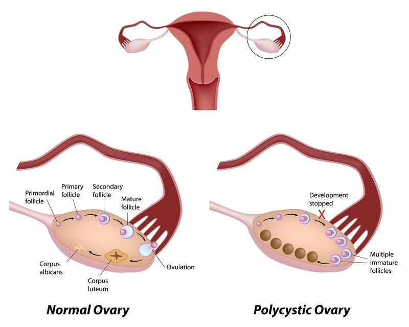 pcos, polycystic ovaries, polycystic ovarian syndrome, polycystic ovary syndrome
