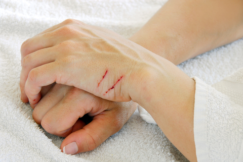 Things to remember when treating small wounds
