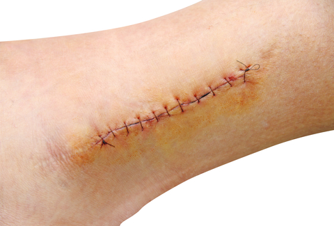 Things to remember when treating large wounds