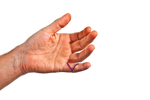 First aid for blast injuries on the hands
