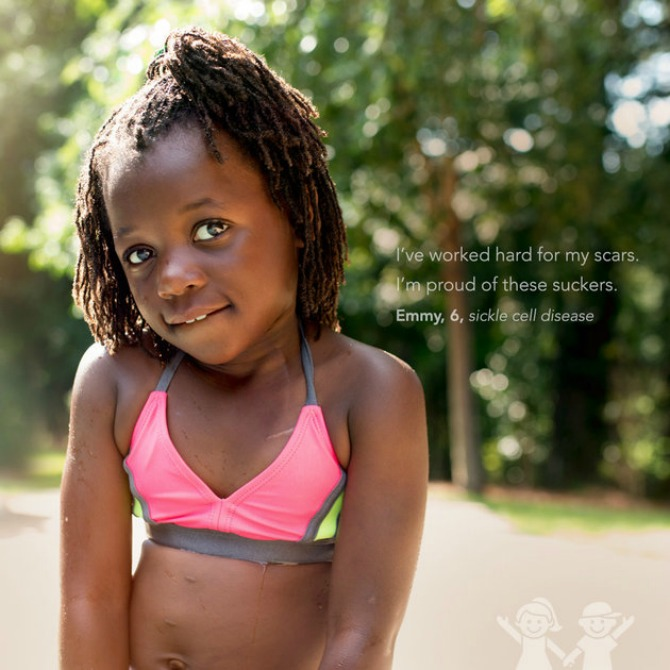 Emmy, 6, sickle cell disease