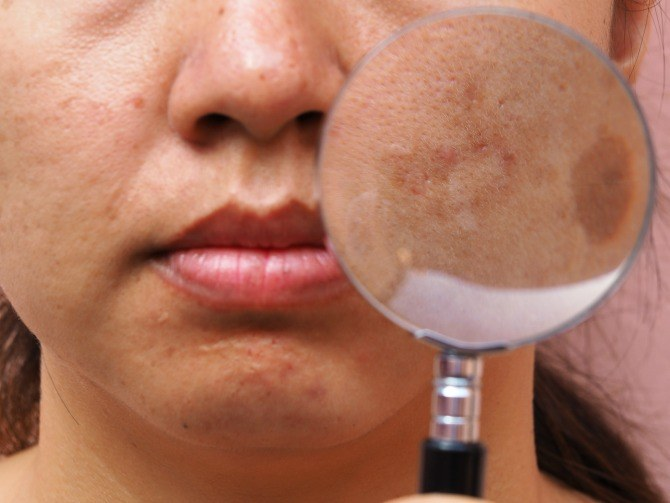 melasma 1 Be in the know about melasma, a skin condition that frequently affects pregnant women
