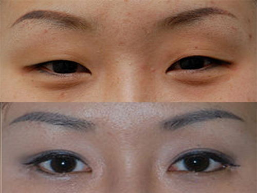 child grow double eyelids