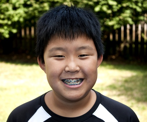 My child needs braces! – Braces for kids in Singapore