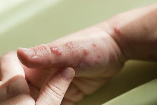 chicken pox and shingles