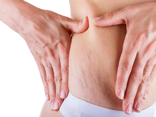 You don't have to live with stretch marks anymore