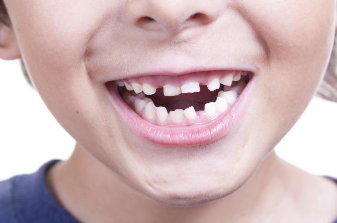 order of baby teeth appearance