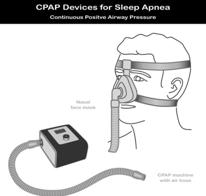 Figure 3: Diagram of CPAP machine and mask. There are various machines and mask-types available commercially.