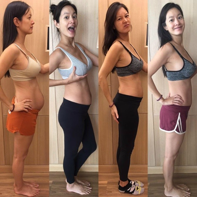 src=https://sg.theasianparent.com/wp content/uploads/2017/11/Diastasis recti Janet Hsieh 2 1.jpg This mom will inspire you to wear your stretchmarks with pride!