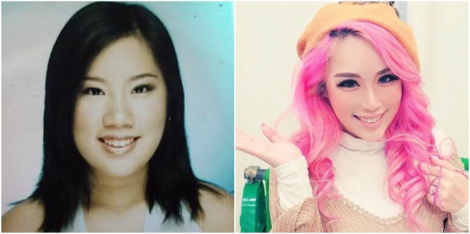 Xiaxue Before Surgery Plastic Surgery In Sin...