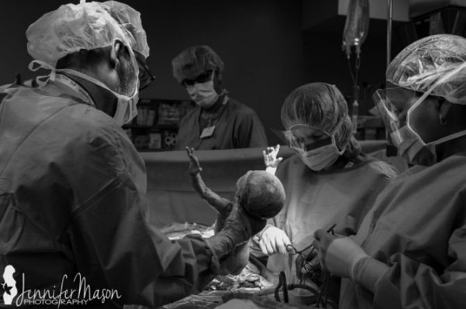 c-section birth images