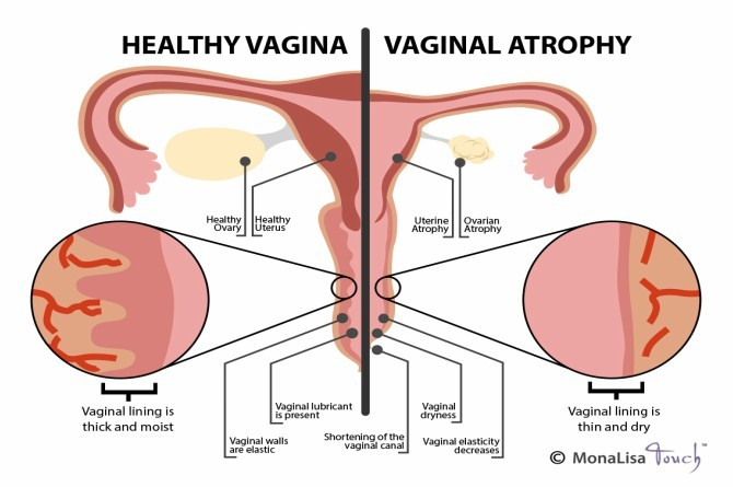 vaginal atrophy Not enough sex? This is what happens to your vagina