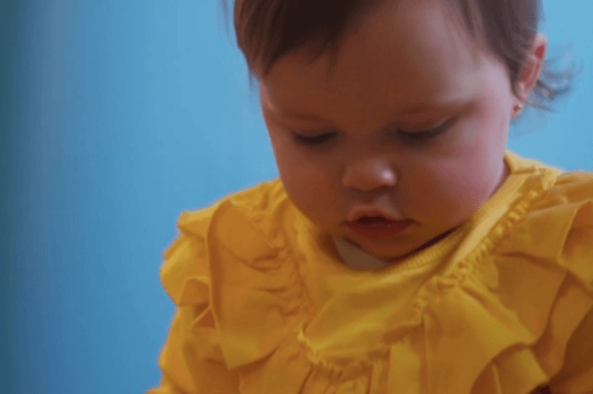 src=https://sg.theasianparent.com/wp content/uploads/2018/02/Eczema1 4.png Baby girl cured of horror eczema by an all natural cream