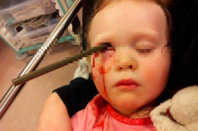 src=https://sg.theasianparent.com/wp content/uploads/2018/02/toddlers eye stabbed 2.jpg Toddler stabbed in the eye and brain by large pencil