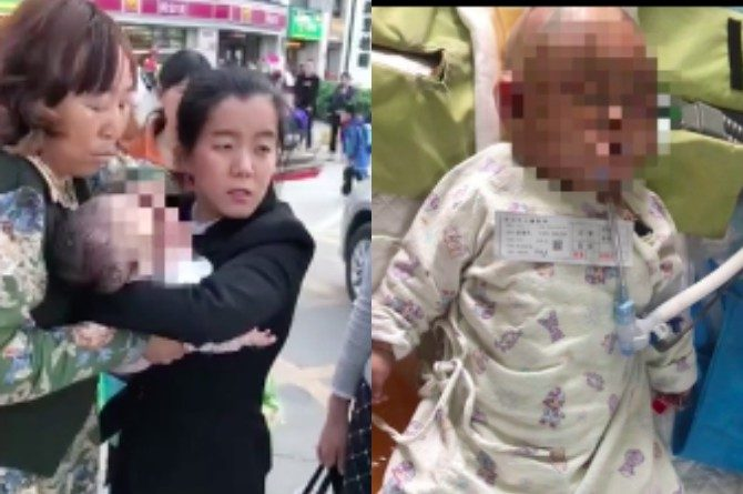 src=https://sg.theasianparent.com/wp content/uploads/2018/03/apple injures baby feat .jpg High rise responsibility for kids: 11 Year old throws apple, puts baby in a coma
