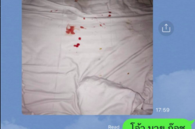 src=https://sg admin.theasianparent.com/wp content/uploads/sites/12/2018/04/bloody bed sheets article.jpg Dentist warns against dangers of performing oral sex while wearing braces