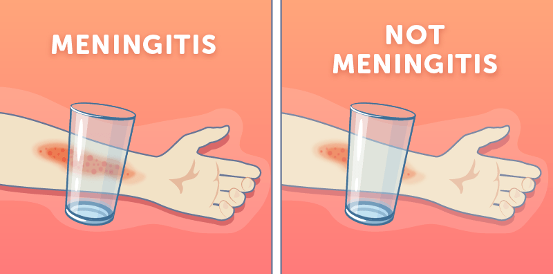 Early meningitis symptoms in toddlers parents need to watch out for