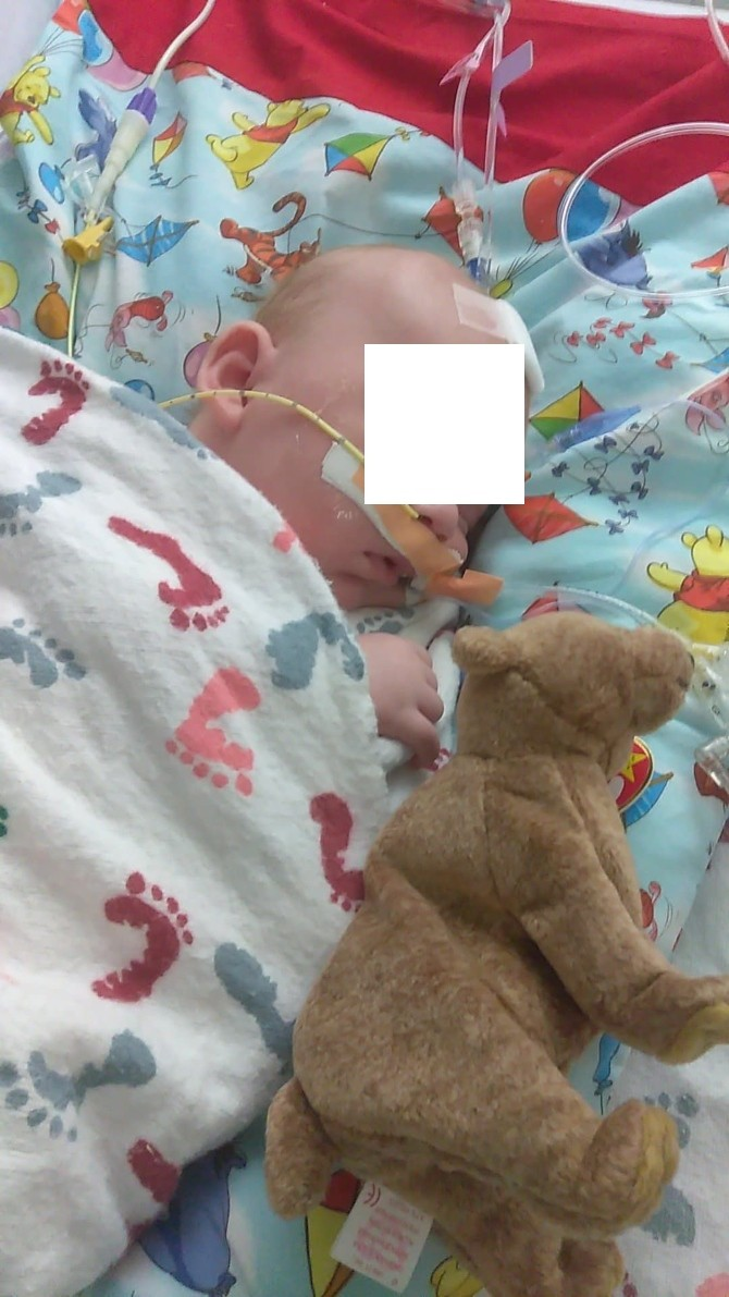 src=https://sg admin.theasianparent.com/wp content/uploads/sites/12/2018/08/infant botulism 2 2.jpg 5 week old baby seriously ill with infant botulism
