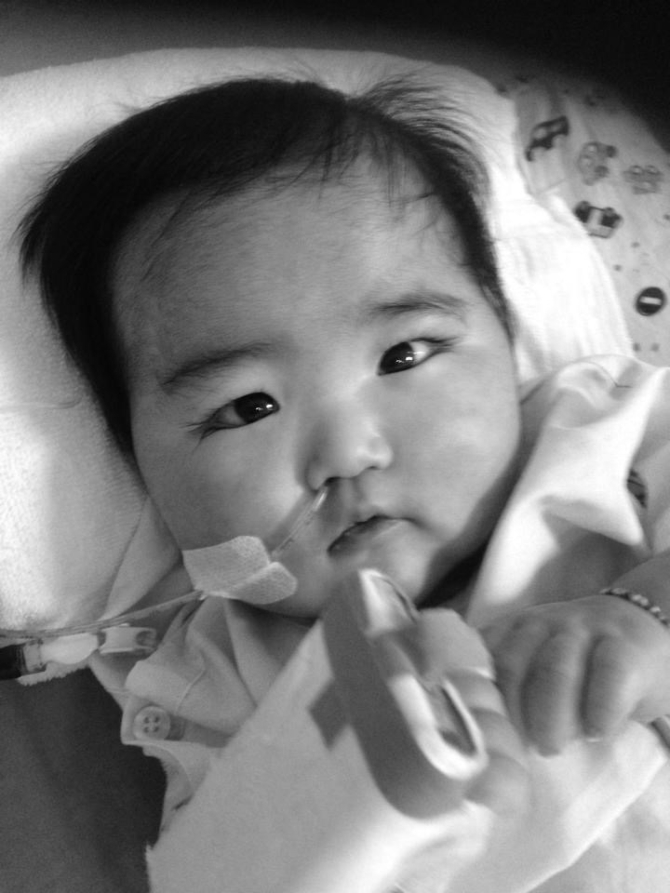 Kawasaki disease in babies