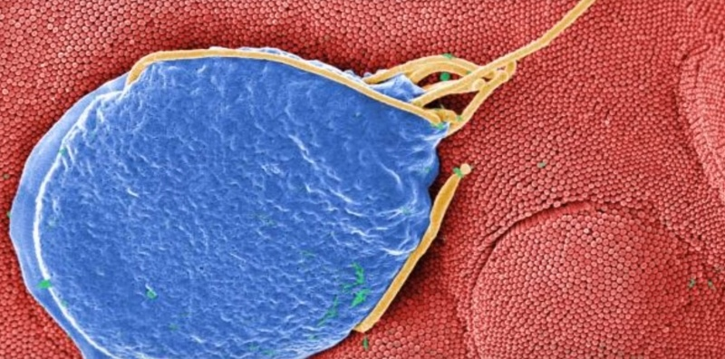 parasite infections in humans