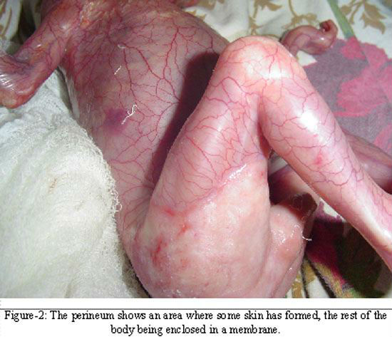 src=https://sg admin.theasianparent.com/wp content/uploads/sites/12/2018/12/what medications are not safe to take during pregnancy intext2 1.jpg Baby born without skin due to mom taking potent medication while pregnant