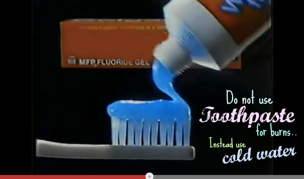 4. Toothpaste for burns