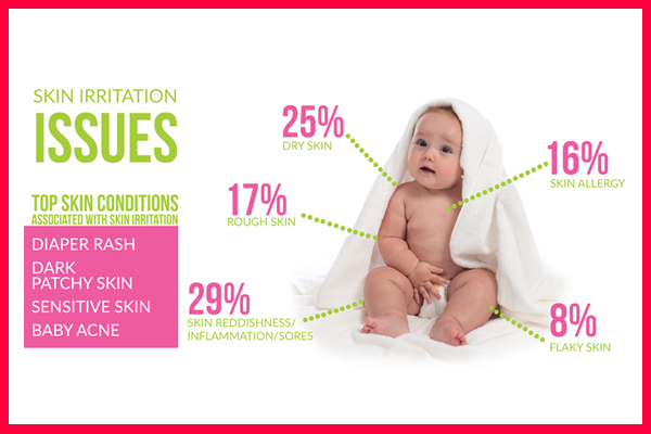 Babies' top skin irritation issues