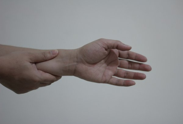 17. Carpal Tunnel Syndrome