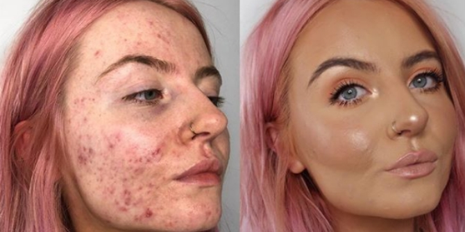 Best Foundation For Acne Scars