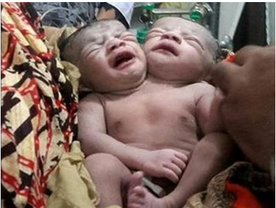 Baby girl born with two heads in Bangladesh