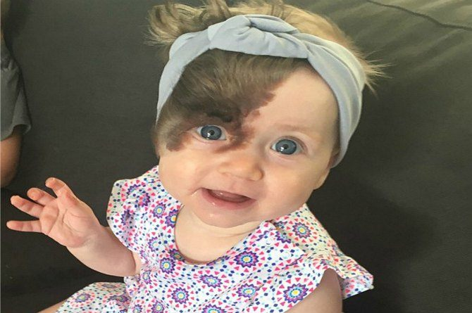 7-month-old baby to undergo four surgeries to remove birthmark
