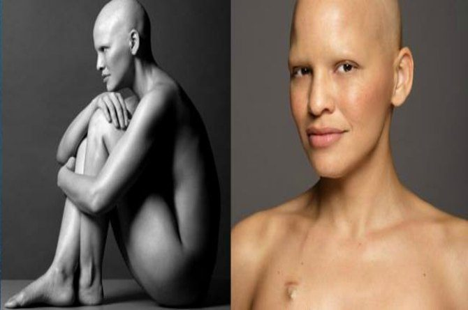 'I have stage 3 breast cancer and I have never felt more beautiful in my entire life'