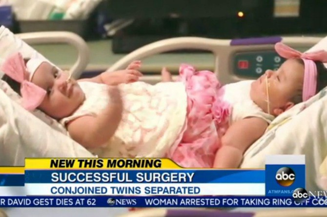 Conjoined twins successfully undergo a 12-hour surgery to separate their bodies