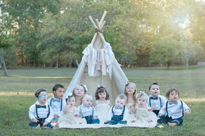 Stunning photo collection celebrates beauty of children with down syndrome