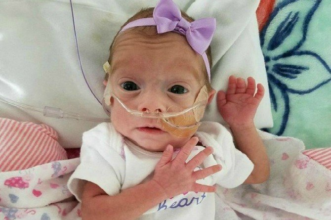 Breastfeeding preemie's viral post inspires families everywhere