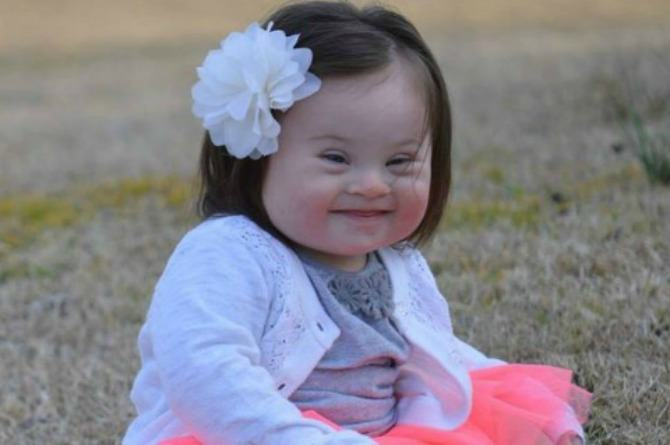 """Mum tells doctors who suggested abortion that they were """"so very wrong"""" about her daughter with down syndrome"""