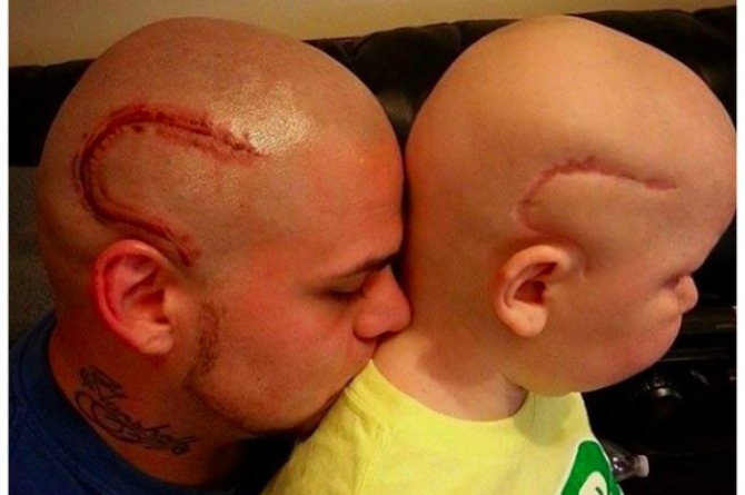 LOOK: Dad gets scar tattoo to comfort son who is battling cancer